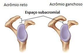 Raio-X Normal